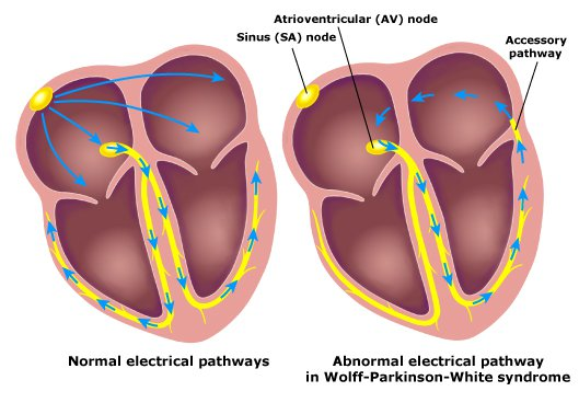 Wolff-Parkinson-White Syndrome Electrical Pathways