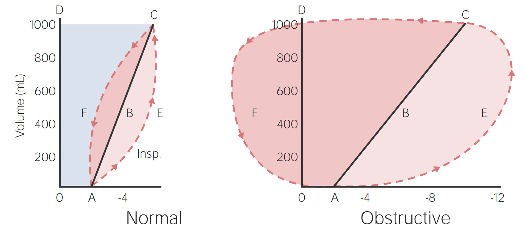 Work of breathing in a normal lung (left) compared to a lung with obstructive pulmonary disease (right)