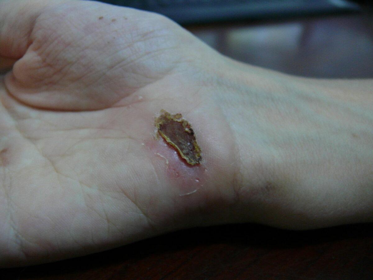 Wound healing day 12