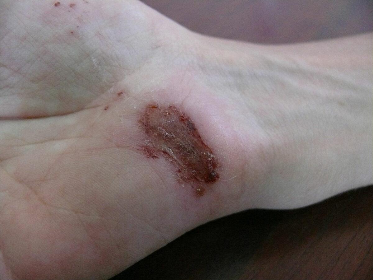 Wound healing day 2