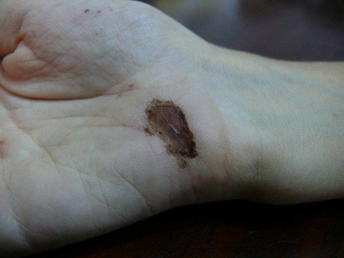 Wound healing day 7