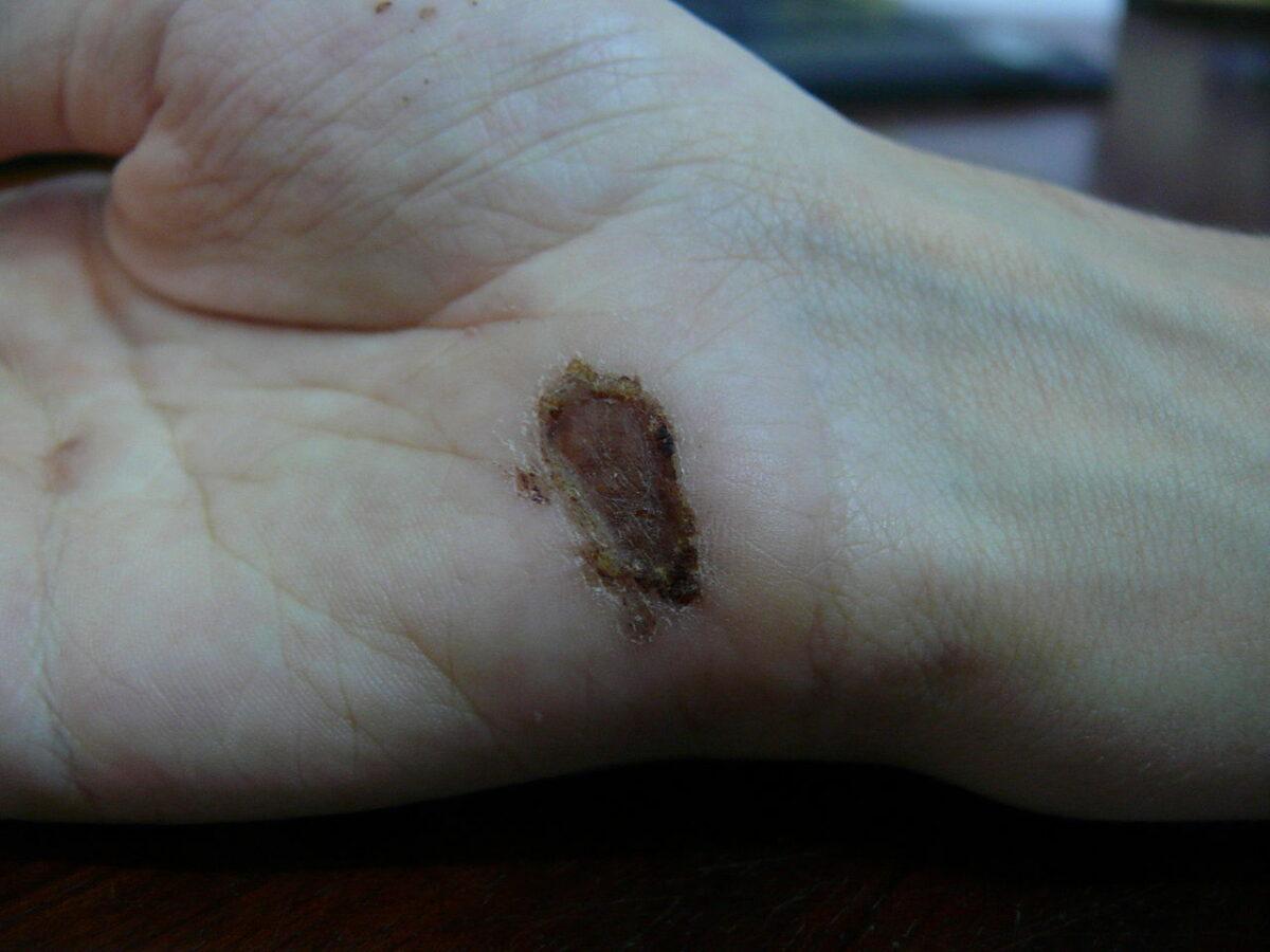 Wound healing day 9