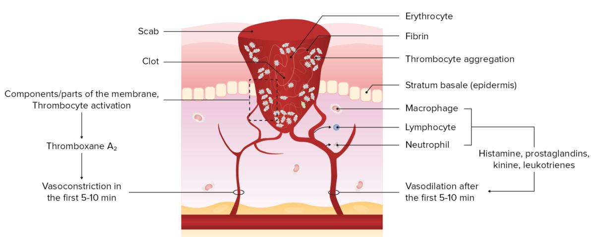 Wound healing hemostasis exudative phase