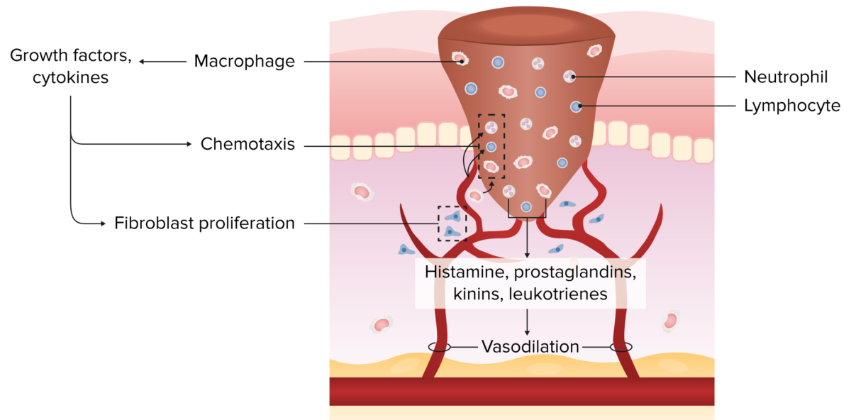 Inflammation and resorption
