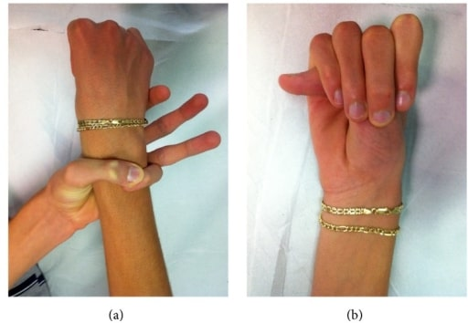 Wrist and thumb sign in Marfan syndrome