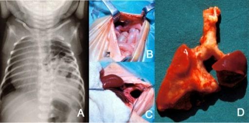 X-ray and repair of diaphragmal hernia