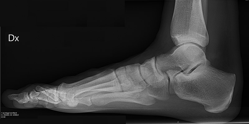 X-ray of normal right foot by lateral projection