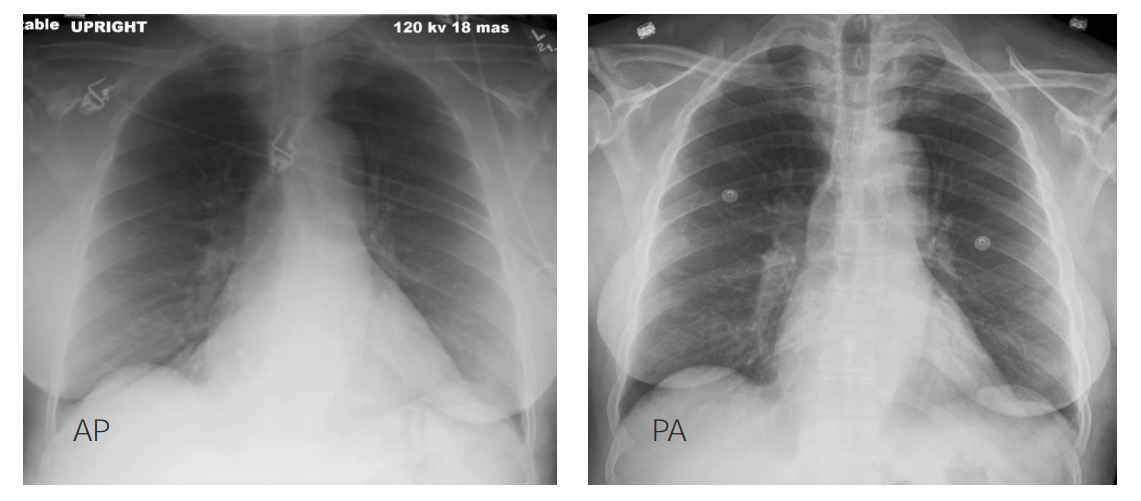 X-ray views - difference between AP and PA