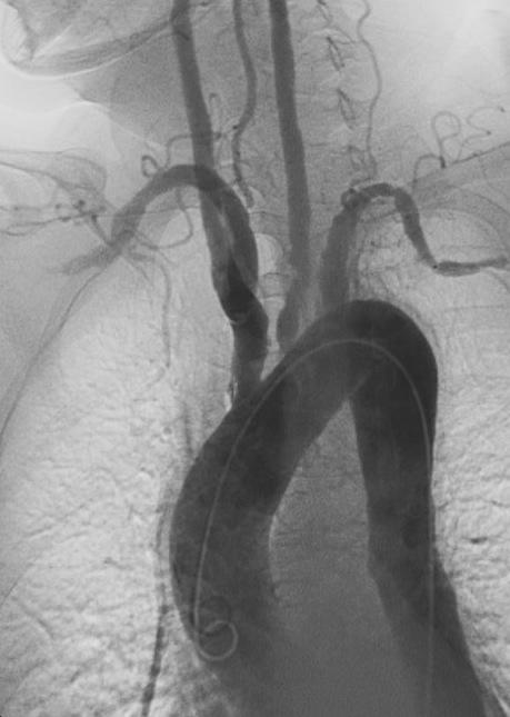 Angiogram Takayasu_Arteritis