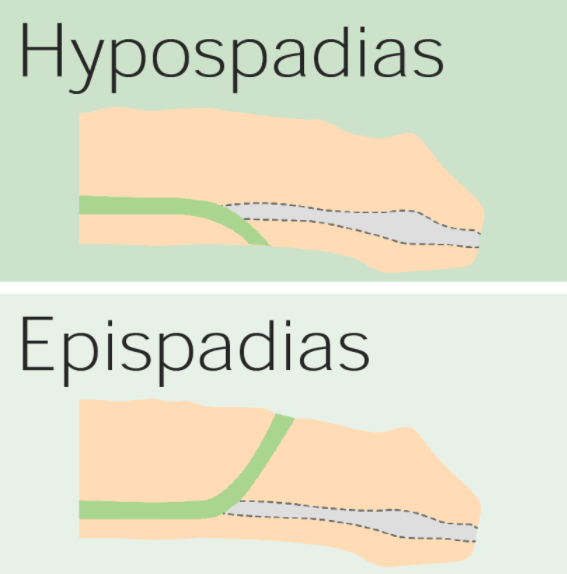 difference between hypospadias and epispadias penile anomalies and conditions