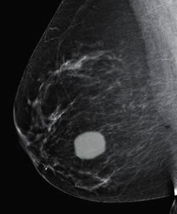 fibroadenoma on mammogramm