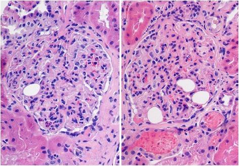 histology for diffuse proliferative glomerulonephritis