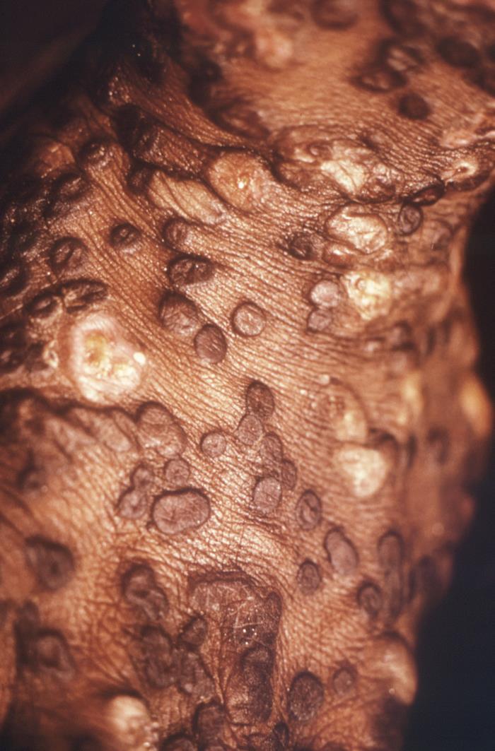Maculopapular rash neck and chest smallpox orthopoxviridae