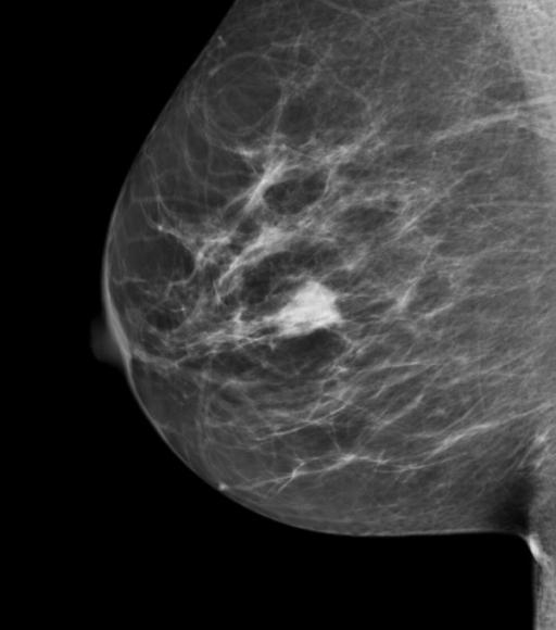 Mass on screening mammography