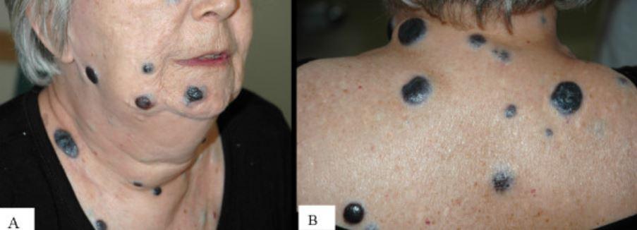multiple large nodular melanomas