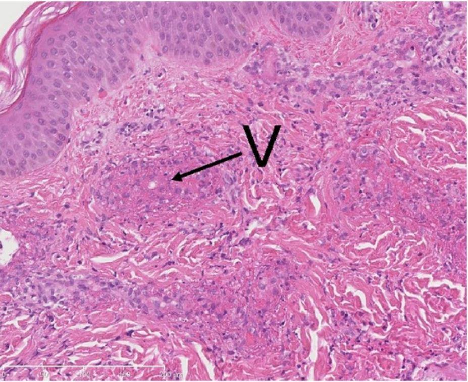 neutrophilic infiltrate and exudation of fibrin (fibrinoid necrosis)