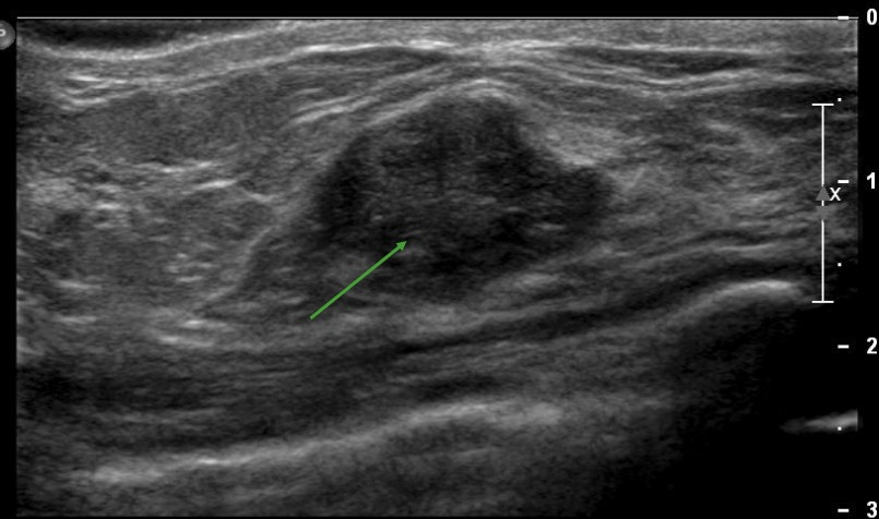 nonspecific hypoechoic structure on ultrasound of the right breast