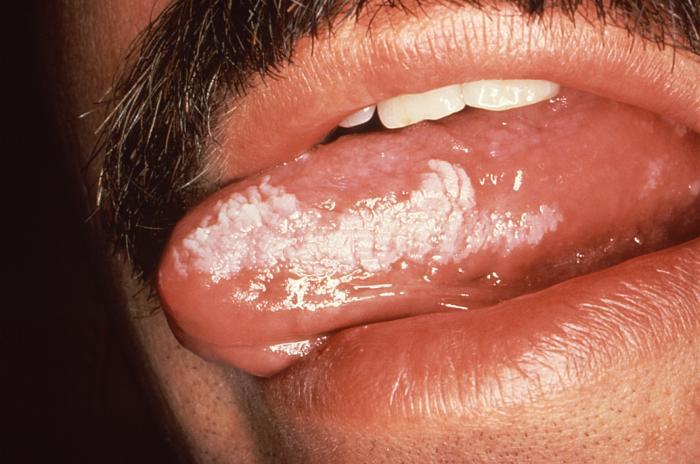 oral hairy leukoplakia Epstein-barr virus