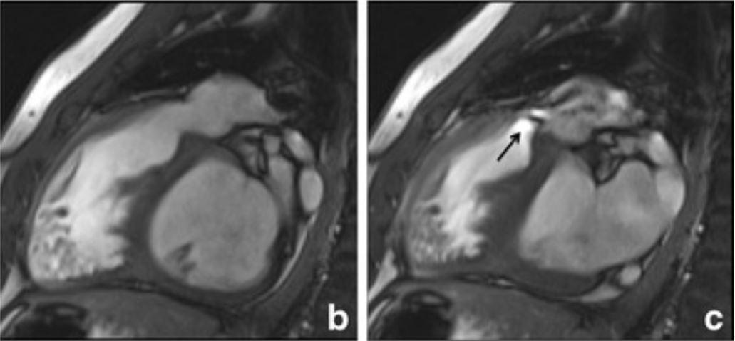 Pulmonary hypertension showing b. dilated pulmonary artery and c. severe eccentric RV