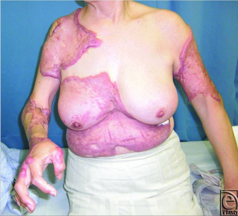 severe spontaneously-occurring widespread keloids with hypertension
