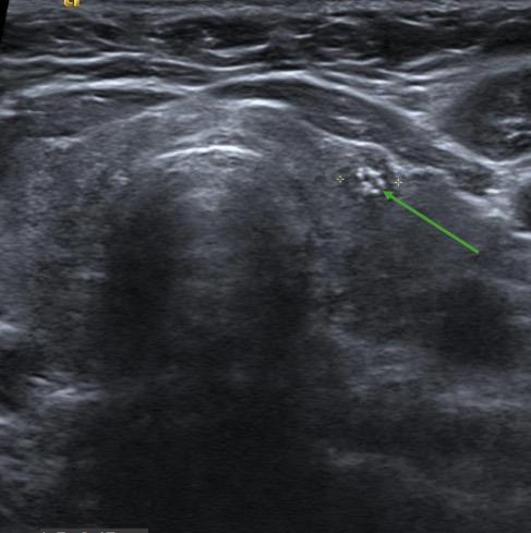 thyroid nodule containing internal calcification