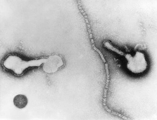 Transmission electron micrograph of a parainfluenza virus