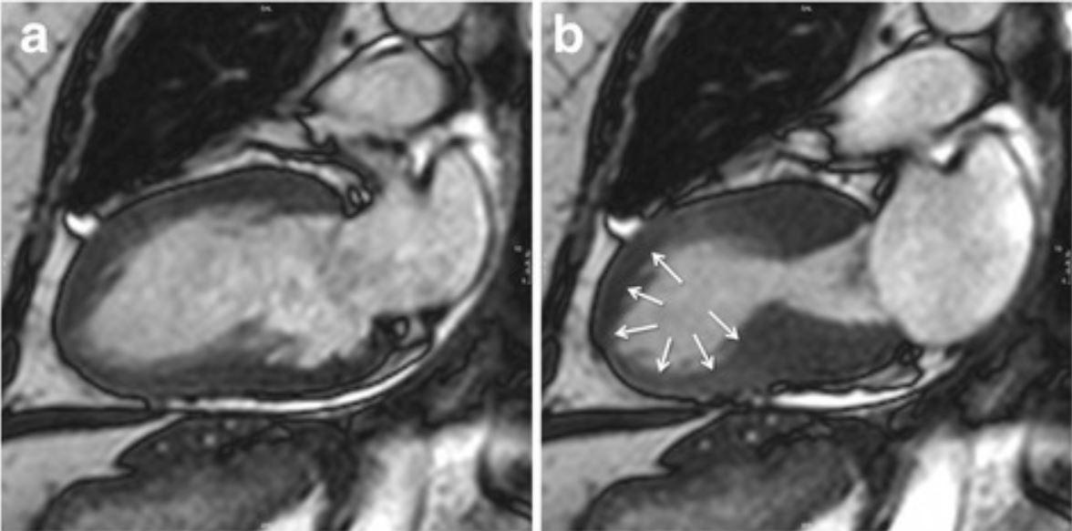 typical apical ballooning in takotsubo cardiomyopathy